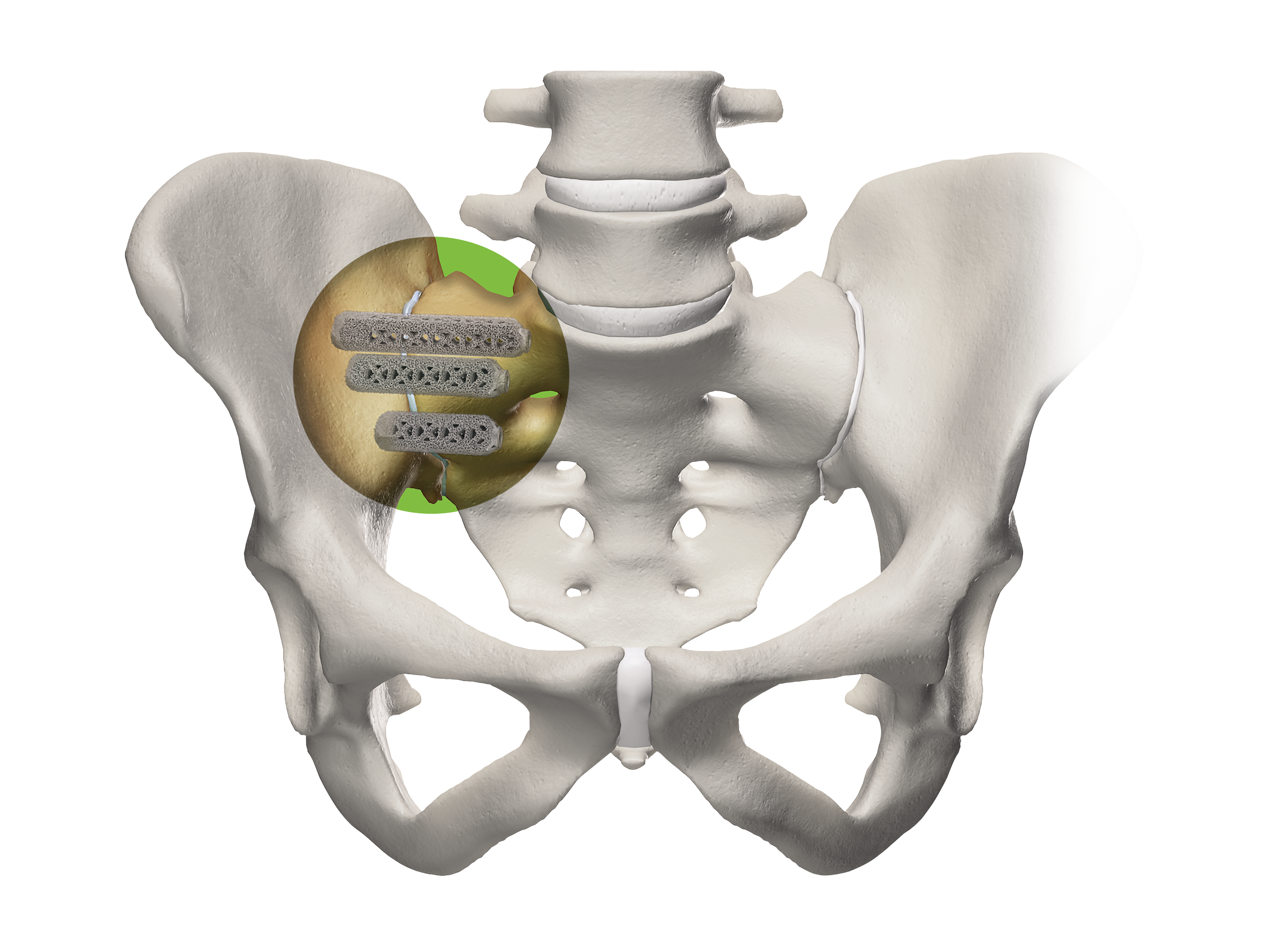 Pelvis closeup with iFuse-3D Implants