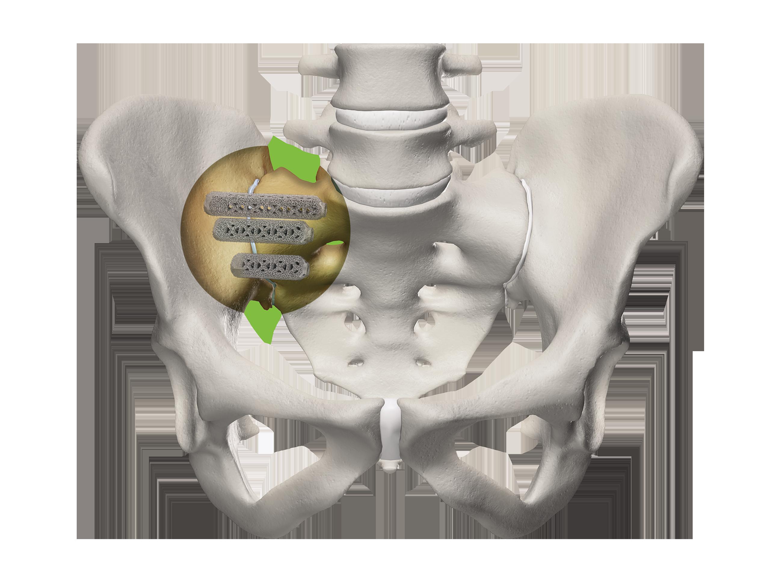 Pelvis closeup with 3D Implants