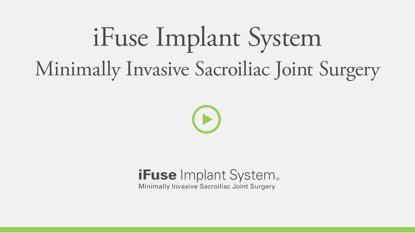 Video Card - iFuse Surgical Technique Video - providers