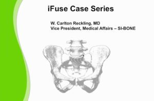 Ifuse Case Series Reckling